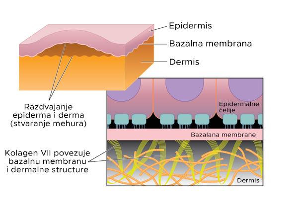 Epidermolysis bullosa - Karakteristike