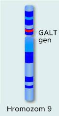 Galaktozemija - Tipovi galaktozemije